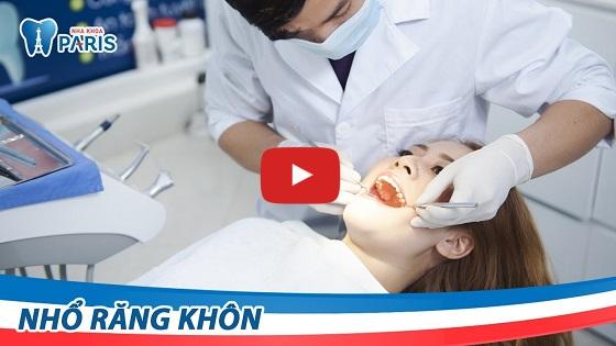 Video khách hàng nhổ răng khôn tại nha khoa Paris