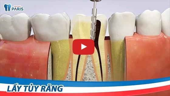 Quy trình lấy tủy răng an toàn, triệt để tại nha khoa Paris