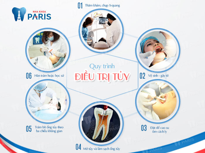 các bước điều trị tủy tại nha khoa Paris